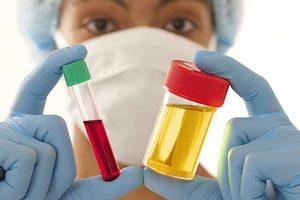 Общие анализы крови и мочи