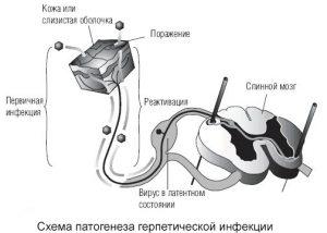 Схема патогенеза герпетической инфекции