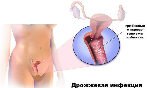 Эпиген спрей от молочницы