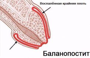 Воспаление крайней плоти при баланопостите