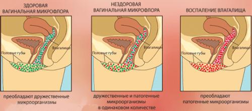 Здоровая и нездоровая микрофлора