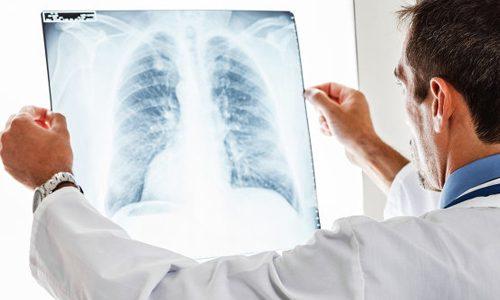 Диагностика кандидоза легких