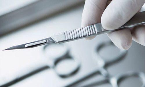 Хирургический метод удаления папилломы