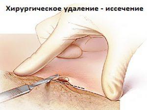 Хирургическое удаление папилломы