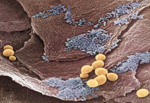 Клетки грибка Кандида