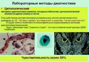 Лабораторные методы диагностики