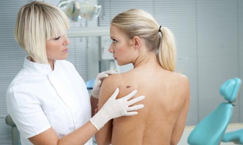 Папилломы на спине: причины и лечение