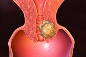 Опухоль в шейке матки