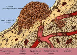 Озлокачествление клеток кожи