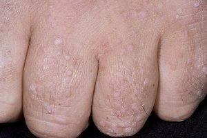 Плоские папилломы на пальцах