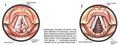 Расположение папилломы в гортани