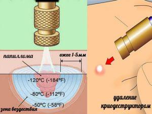 Схема применения метода криохирургии