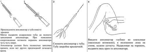 Схема применения вагинального крема