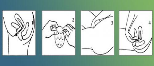 Схема введения вагинальных свечей