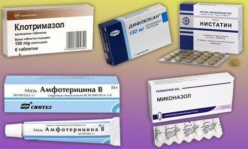 Средства для лечения кандидоза при ВИЧ