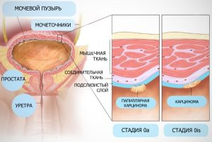 Стадии карциномы