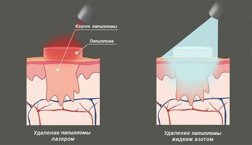 Удаление лазером и азотом