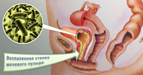 Воспаление стенки мочевого пузыря