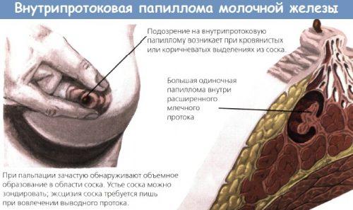 Особенности внутрипротоковых папиллом
