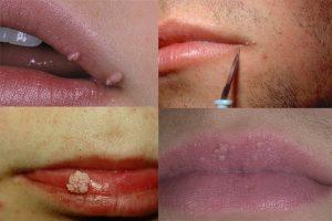 Разновидности папиллом на губах