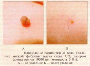 Результат удаления фибромы