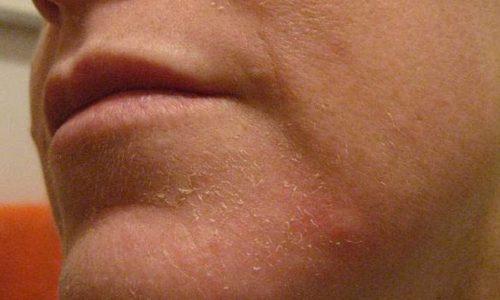 Шелушение кожи от мази