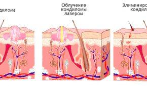 Схема удаления кондиломы