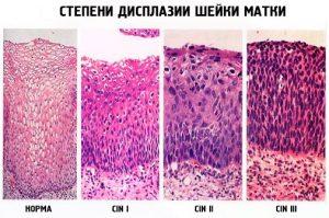 Степени дисплазии шейки матки