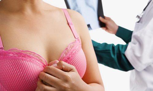 Внутрипротоковая папиллома у женщин