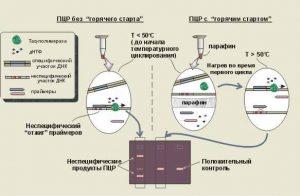 Анализ на инфекции ПЦР