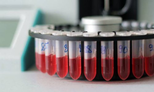 Диагностика цитомегаловирусной инфекции