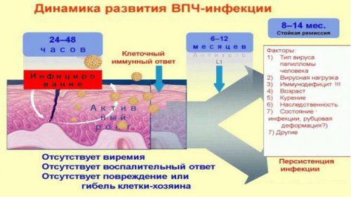 Динамика развития ВПЧ-инфекции