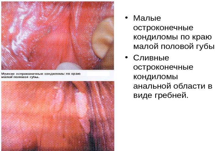 как выглядят папилломы на половых губах