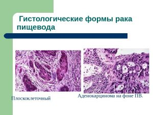 Гистологические формы рака пищевода