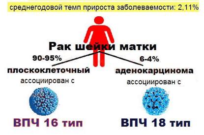 Как вылечить вирус папилломы человека навсегда