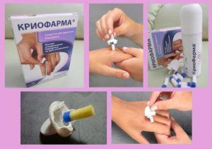 Применение средства Криофарма