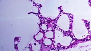 Проявление цитомегаловирусной инфекции