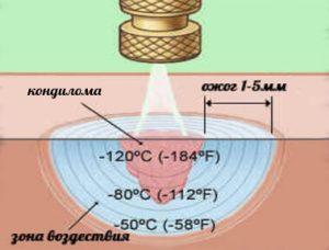 Схема криодеструкции
