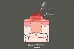 Схема воздействия лазера