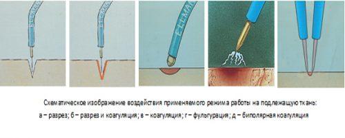 Схема воздействия на кожу