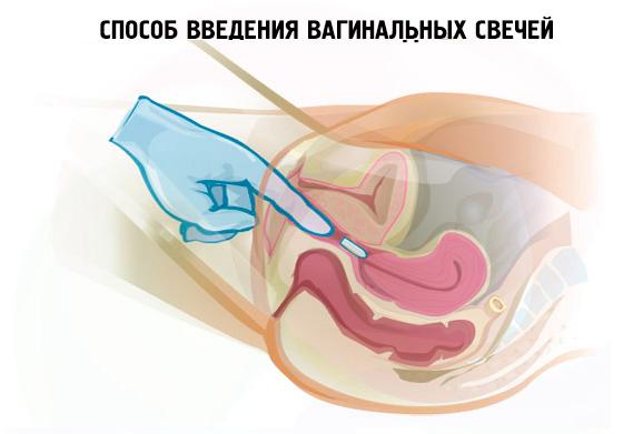 Анус и вагина - Pelotkashopru