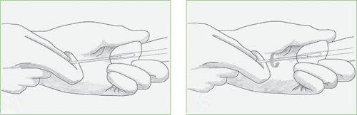 Взятие мазка из уретры
