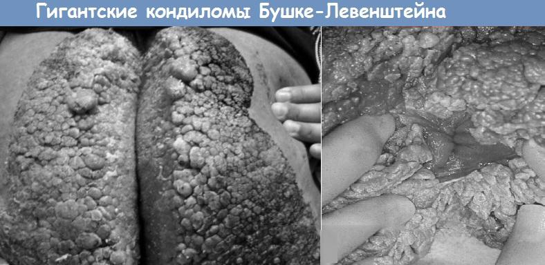 Гигантская кондилома Бушке-Левенштейна: причины и лечение