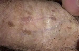 Бовеноидный папулёз