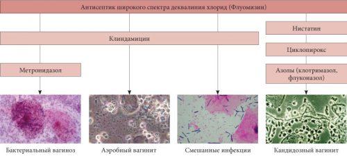 Действие флуомизина на возбудителей инфекции
