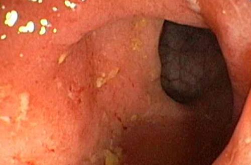 Опущение матки причины патологии симптомы лечение и