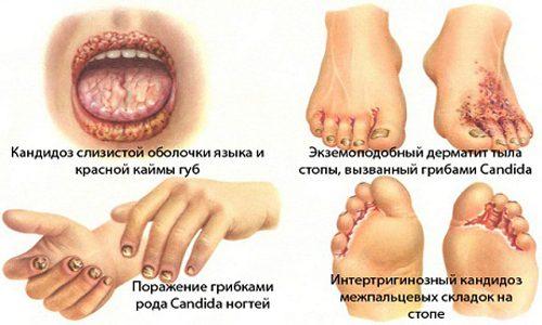 Кандидоз кожи