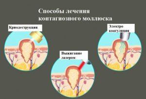 Методы лечения контагиозного моллюска