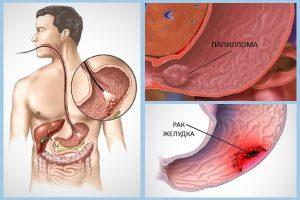 Папиллома и рак желудка