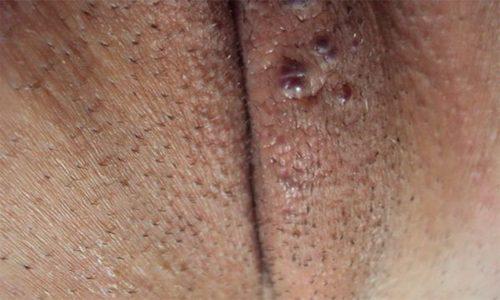 ВПЧ 56 типа у женщин и мужчин: причины, симптомы, лечение